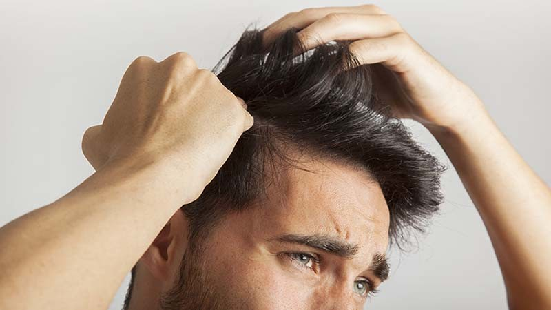 Hair Loss with Irreversible Signs
