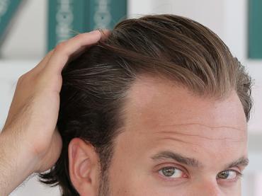 Mit tehetünk a hajhullás késleltetésére?